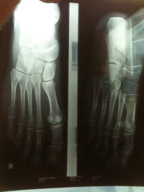 fracture des orteils que faire